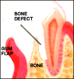 Guided Bone Regeneration