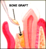 Bone Graft dentistry