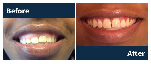 Dentist Crown Lengthening Before and After