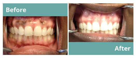 Dentist Periodontist Before and After