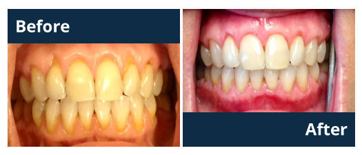 Tissue Graft Before and After